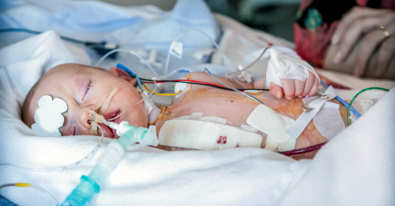 Hospital pressures cardiologists to keep referring pediatric patients for surgery in-house despite disturbing mortality data